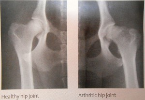 Hip X-Ray of arthritis in our pets
