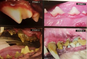 Four stages of Dental Disease